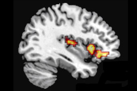 Blaming others fMRI scan